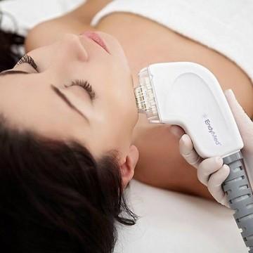 Козметичните процедури: Какво е FSR подмладяване?