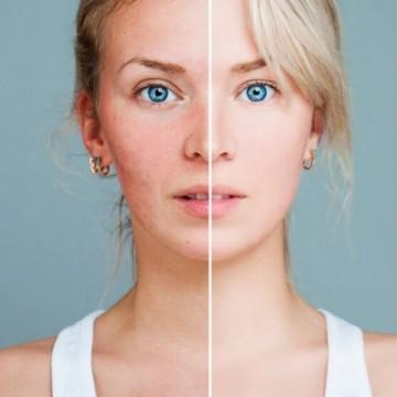 Какво е купероза и защо жените трябва да са наясно с нея